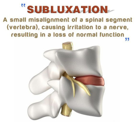 Subluxation, poor health, poor posture,, chiropractic, adjustments, get adjusted.