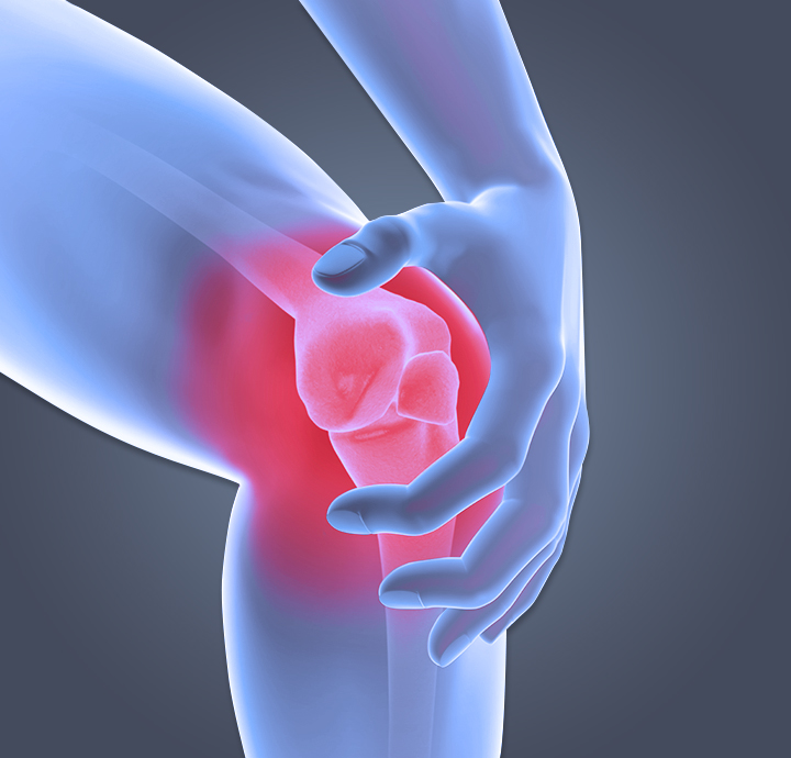 knee pain, what causes knee pain, what can I do about my knee pain